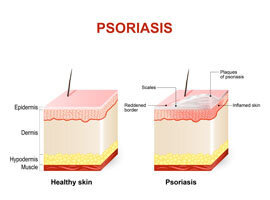 Effective Psorilax any irritation